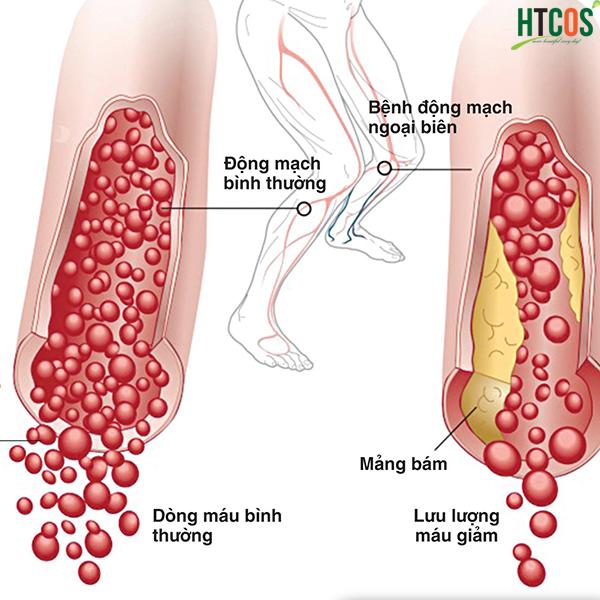 Thuốc Điều Hòa Huyết Áp Maya Yomeijyo phòng sơ vữa động mạch